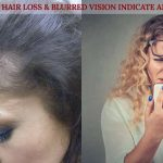 What could Your Hair Loss & Blurred Vision Indicate About Your Health ?