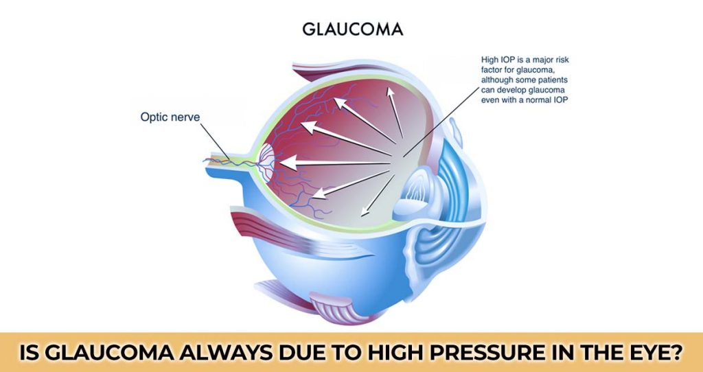 Is Glaucoma Always Due to High Pressure in the Eye?